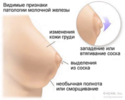 breastsigns