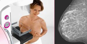 Картинки по запросу маммография фото