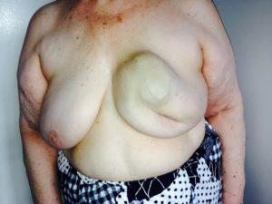 Симптомы рака молочной железы