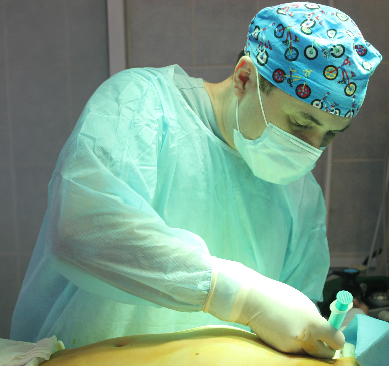 Операция по липофилингу молочных желёз