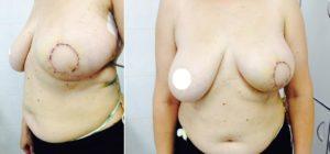 Пациентка 48 лет с диагнозом РМЖ T2N0M0, после радикальная резекция молочной железы с закрытием дефекта ТDL- лоскутоми (8 сутки).