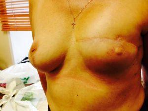 Пациентка после реконструкции по поводу РМЖ, сформирован сосок, планируется татуаж.