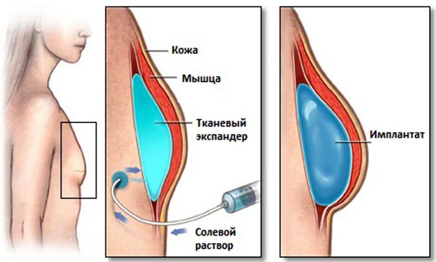 Восстановление груди у пациентов, проходивших лучевую терапию.