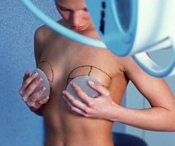 Увеличение груди назвали самой популярной пластической операцией в России.