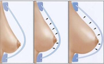 Липофилинг как метод реконструкции груди
